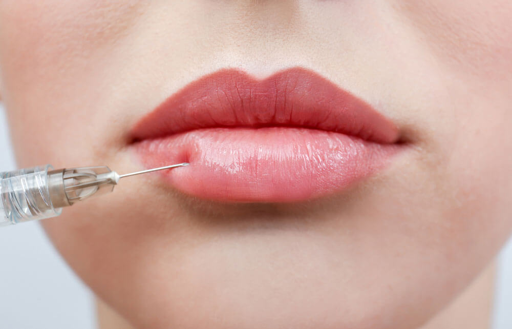 Close up of woman's full lips receiving dermal fillers
