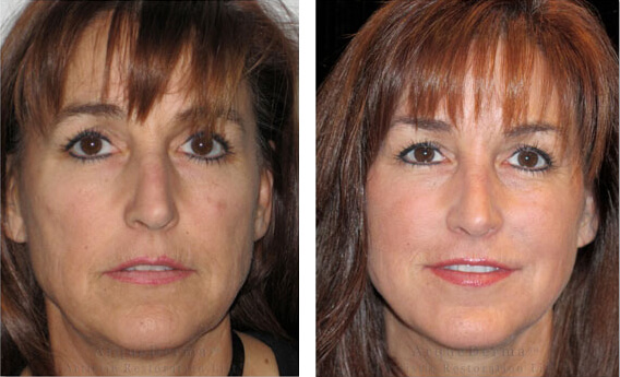 Before and After photos of woman who received Arquederma Advanced Filler Technique