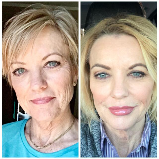 Before and After photos of Mid Face Lift treatment