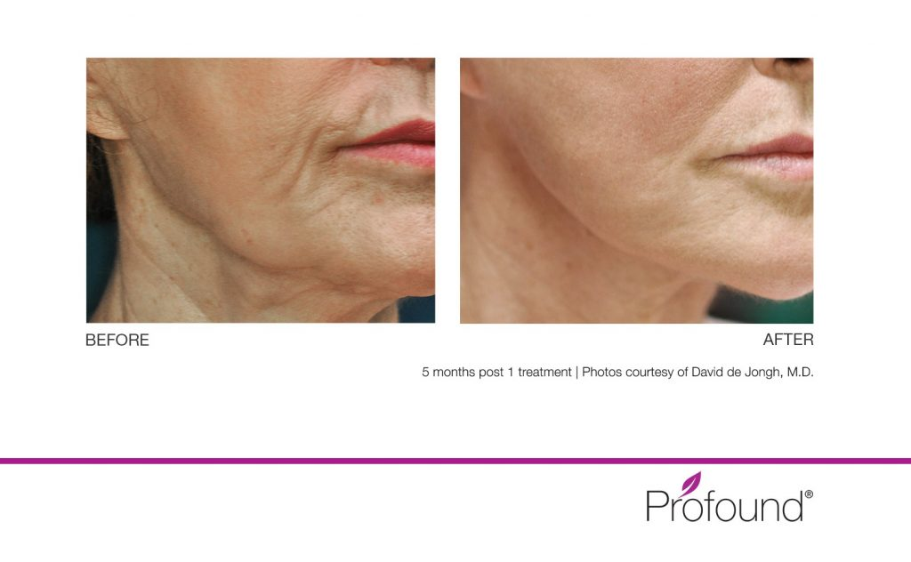 Before and after photos of profound treatment