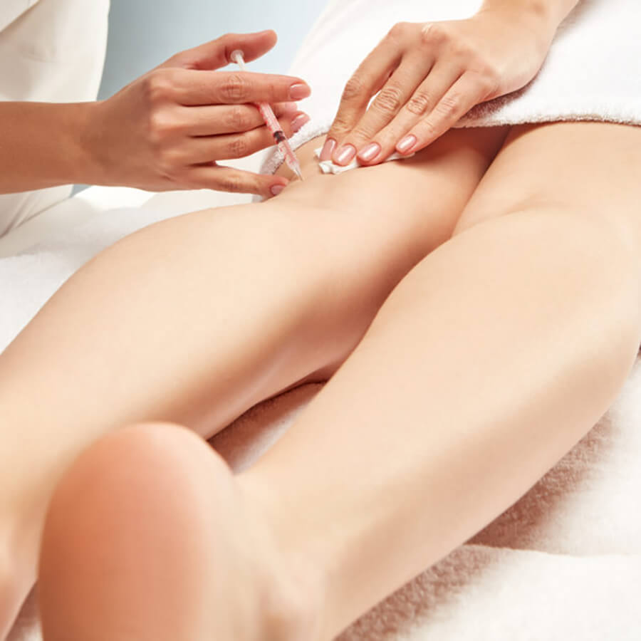 Woman receiving an injection for sclerotherapy behind her knee